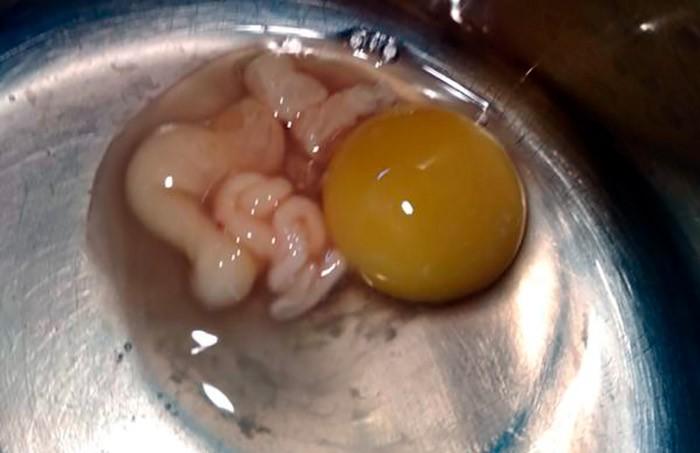 Глисты в яйцах фото